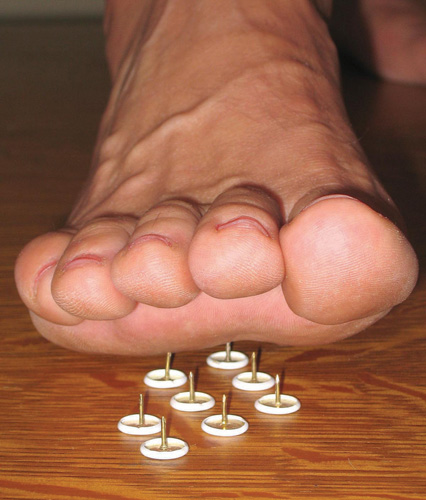 1e0ce8008ac4610 Diabetic Neuropathy In Feet