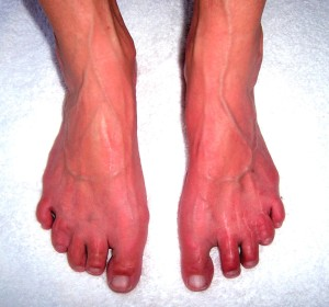 causes of nerve pain in feet